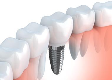 mutuelle dentaire Les implants